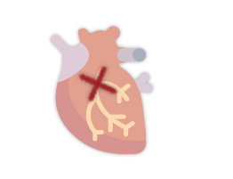 infarto-agudo
