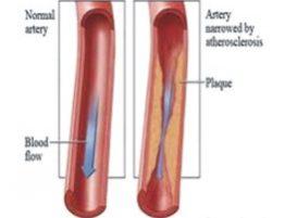 Situação em que o cateterismo cardíaco é necessário