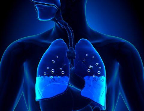 edema agudo dos pulmões