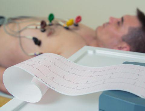 Ultrassonografia em repouso para identificar extra-sístole ventricular