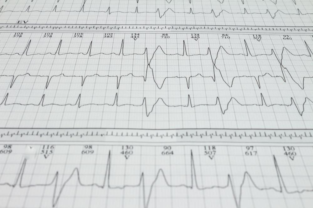 Registro de exames de uma extra-sístole ventricular