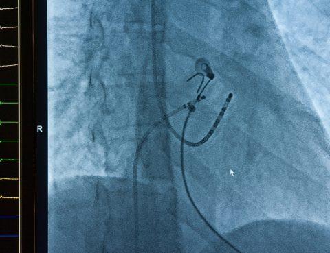 Cateter de ablação cardíaca