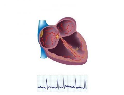 Coração com fibrilação atrial