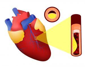 Imagem ilustrativa de um infarto agudo do miocárdio