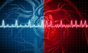 Comparação entre um coração saudável e outro com fibrilação atrial