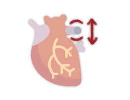 aneurisma-aorta