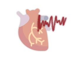 Imagem ilustrativa da fibrilação atrial