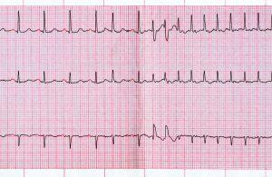 Extrassístole em um eletrocardiograma