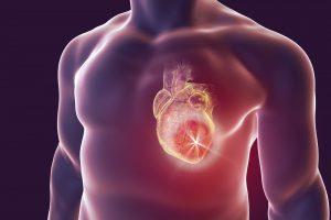 Imagem conceitual de um infarto