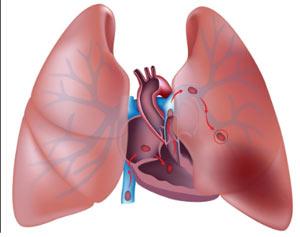 Imagem ilustrativa de uma embolia pulmonar