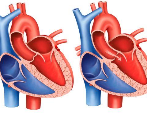 Ilustração de um coração com estenose aórtica